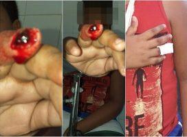 Criança perde o dedo ao brincar dentro da sala de aula em escola de Porto