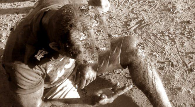 Suplente de vereador de Barras sofre grave acidente e parte do couro cabeludo foi arrancado