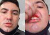 Policial é acusado de agredir advogado na Delegacia de Piripiri